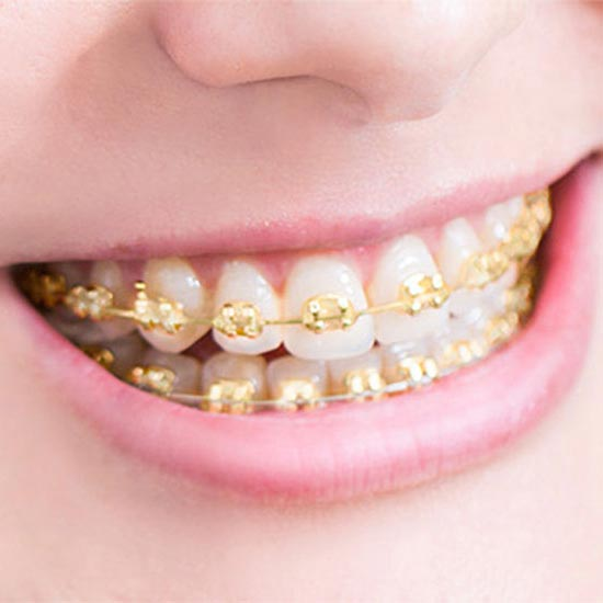 gold braces in bluffton
